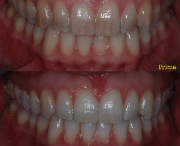 Sbiancamento denti prima e dopo