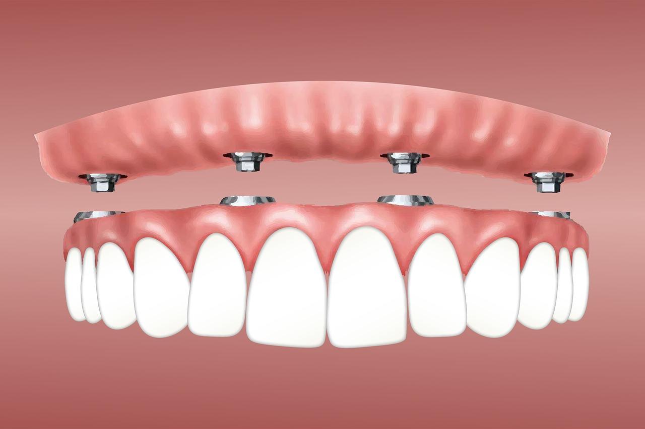 implantologia dentale - Bologna