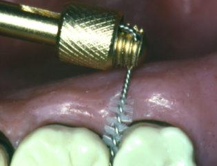 Massaggio gengivale studio odontoiatrico checchi Dentista a Bologna