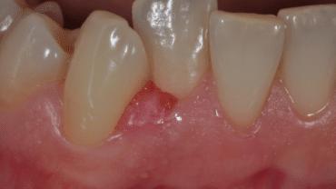 Gengivite gravidica al 3° mese di gravidanza - dentista a Bologna - Ambulatorio Prof. Checchi