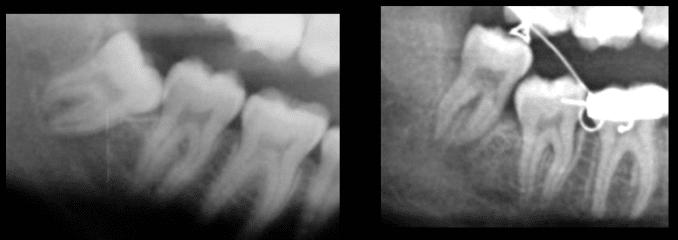 Ortodonzia estrattiva copia