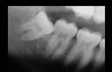 Ortodonzia estrattiva: il dente del giudizio viene allontanato con tecnica ortodontica dal nervo alveolare inferiore
