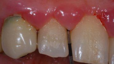 Placca batterica, sonda parodontale nella tasca, malattia parodontale o piorrea.