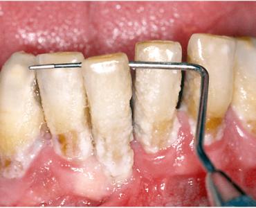 Piorrea e parodontite quadro avanzato